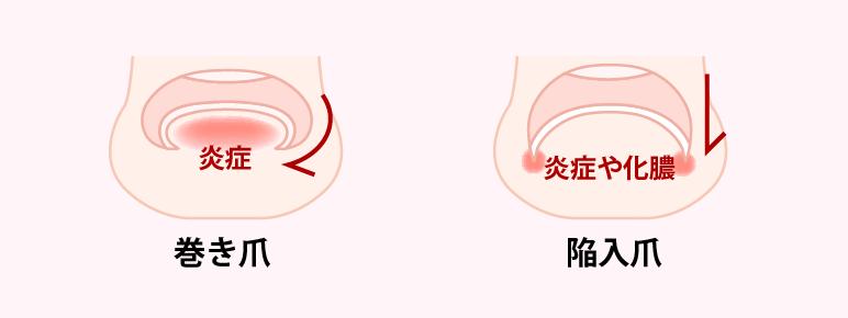痛みの推移で見る巻き爪の経過